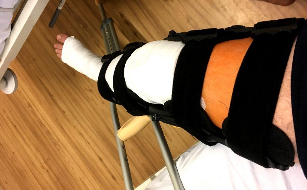 Rehabilitácia po plastike skríženého väzu – ako sa dostať čo najskôr na nohy (prvých 10 dní rehabilitácie).